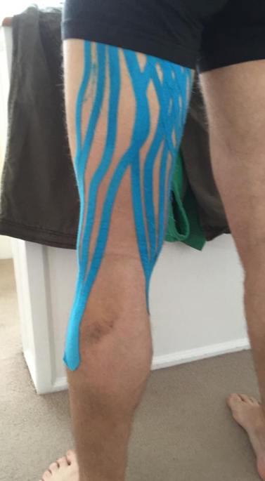 Lymphatic drainage taping